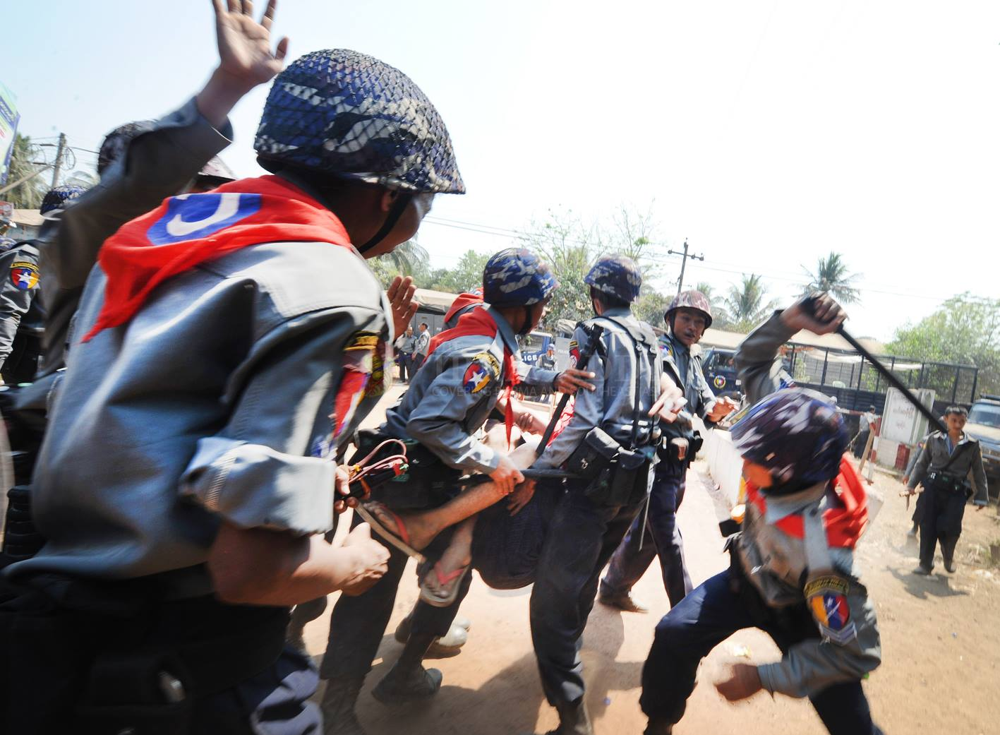 Injured student during Letpadan crackdown
